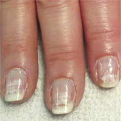 Overcoming the Most Common Problems with Nail Extensions